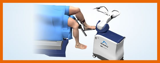 Mako Robotic-Arm Assisted Total Knee replacement